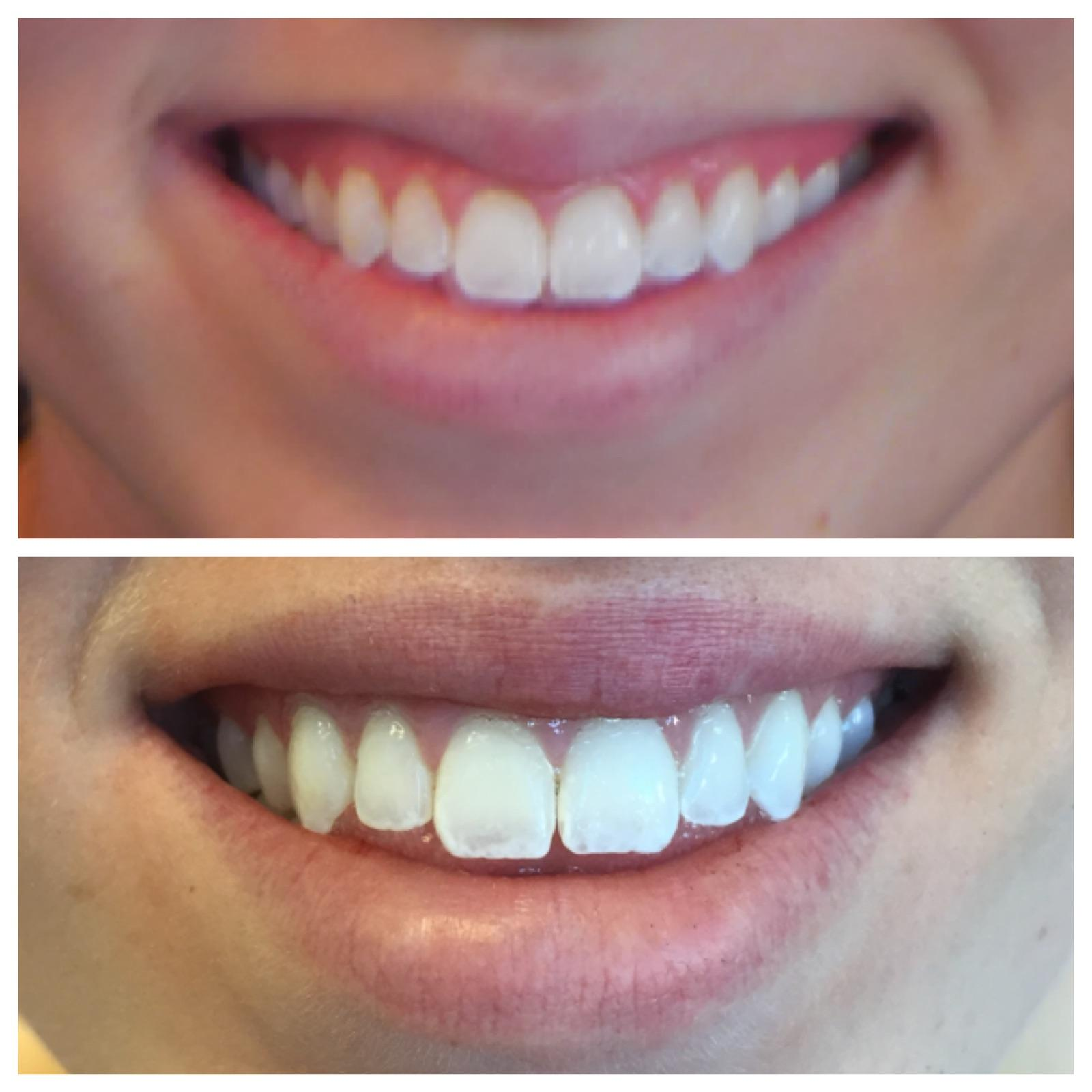 Before and after an aesthetic gum lift