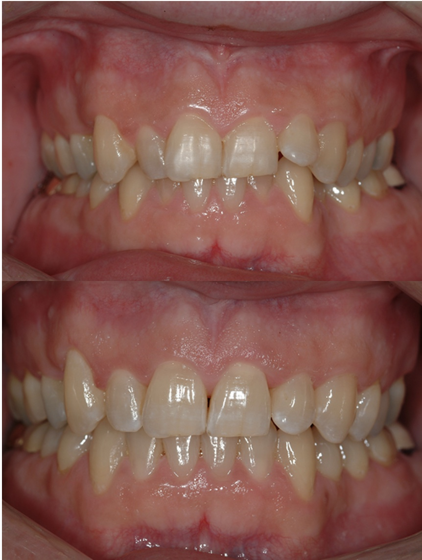 Patient's result of using Invisalign at West End Dental, in Portland, OR