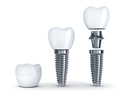Dental Implants vs dentures at West End Dental, in Portland, OR
