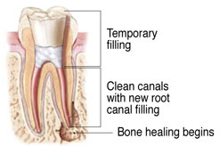 Root Canal diagram at West End Dental