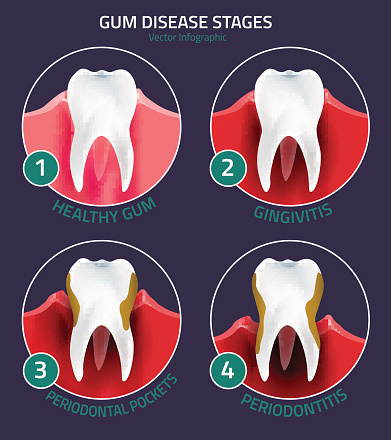 Periodontal Therapy at West End Dental, in Portland, OR