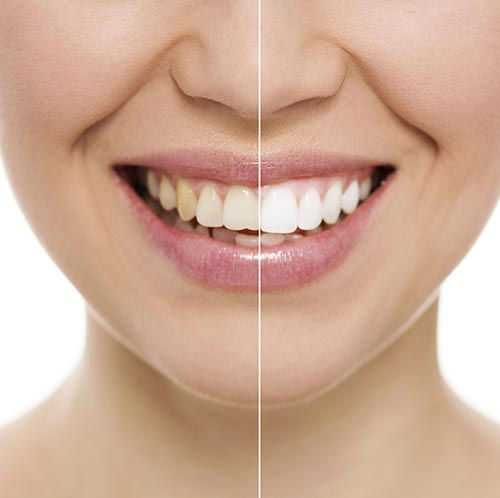 Ways of Decreasing How Many Stains Your Teeth Get